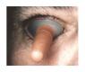 Augapfelschutz Cox II – Größe M: 25,5 x 22 mm